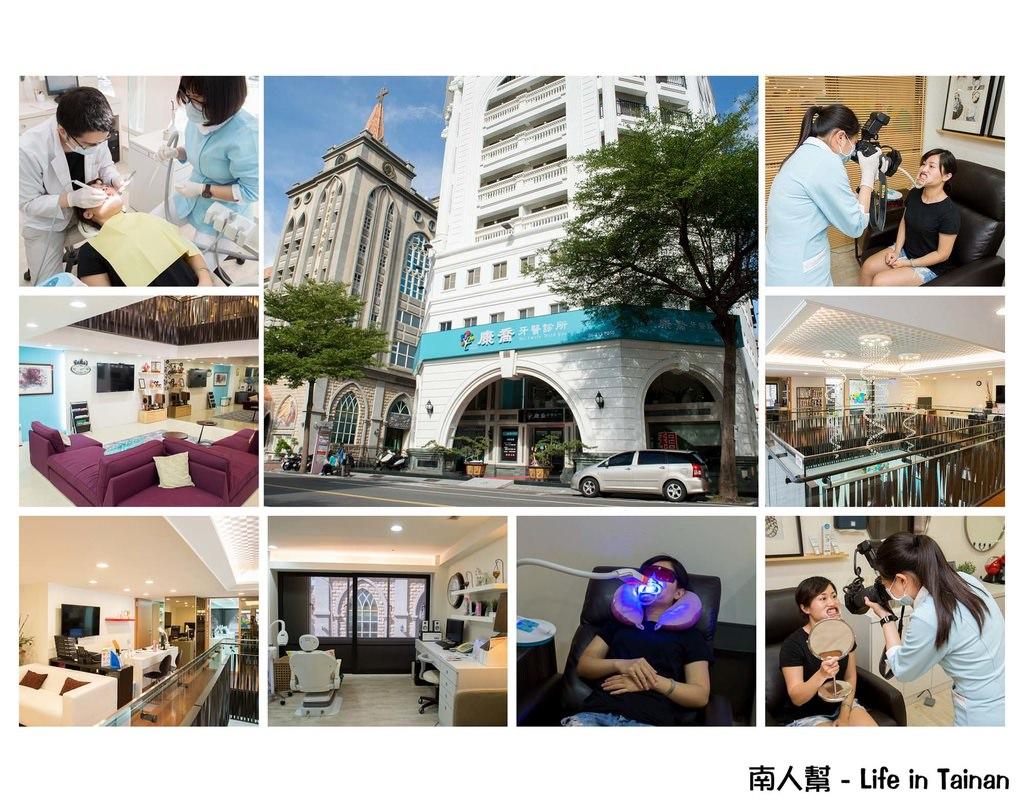 【台南市中西區-美容】讓牙齒變得亮白,淨白貝齒~月牙美齒美學中心